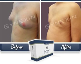 Gynexin Reviews-- Gynaecomastia Procedure